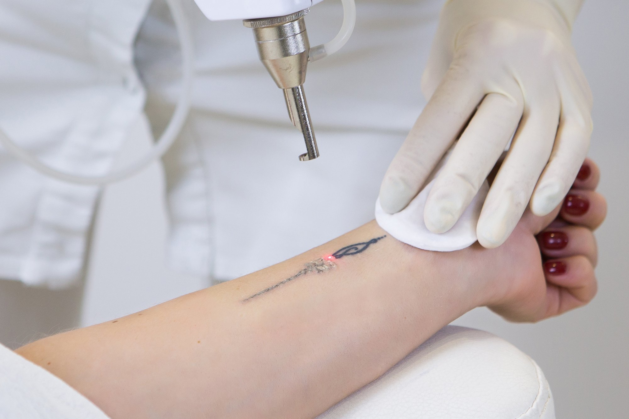 What You Need To Know About Tattoo Removal