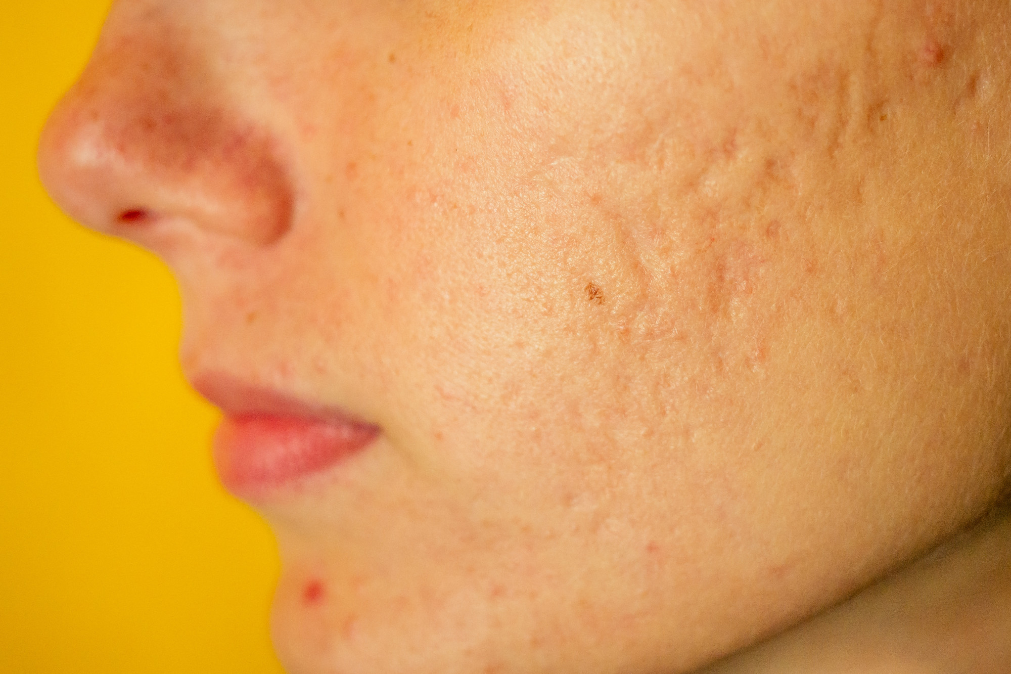 Move On From The Teen Years Is It Possible To Get Rid Of Acne Scars Better Off