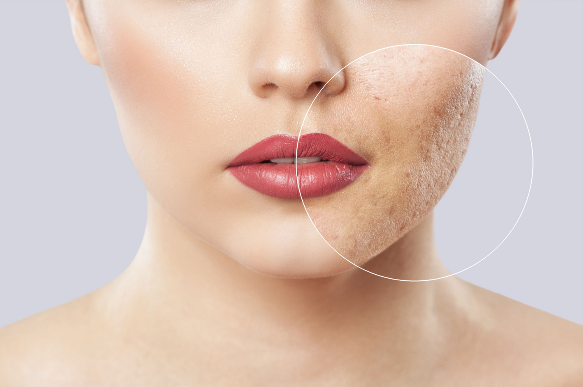 Laser Scar Removal What To Expect After Your Acne Scar Treatment Better Off