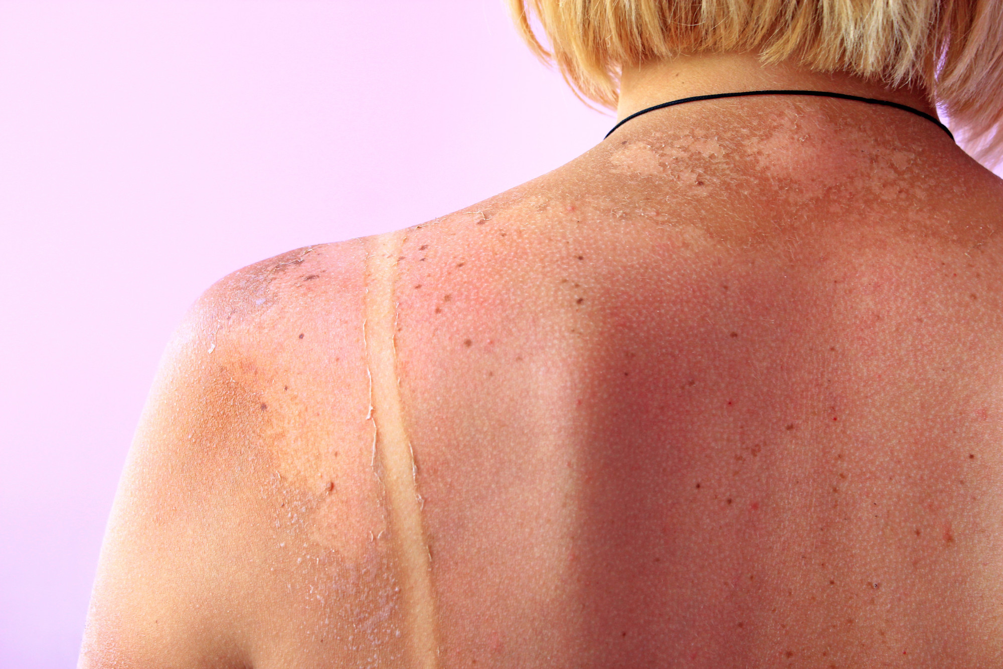 Sunspots On Skin Causes Types And Treatment Options Better Off
